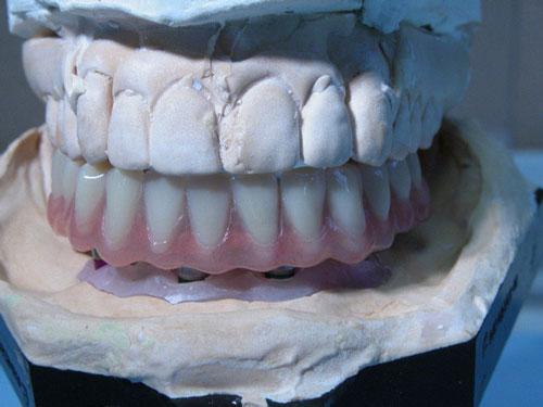 Laboratoire lopez systhèmes implantaires à Limoux protésiste dentaire