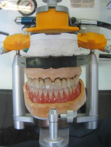Systhèmes implantaires protésiste dentaire à Limoux Laboratoire Lopez
