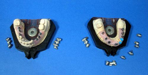 Système implantaire laboratoire Lopez prothéisiste dentaire à Limoux