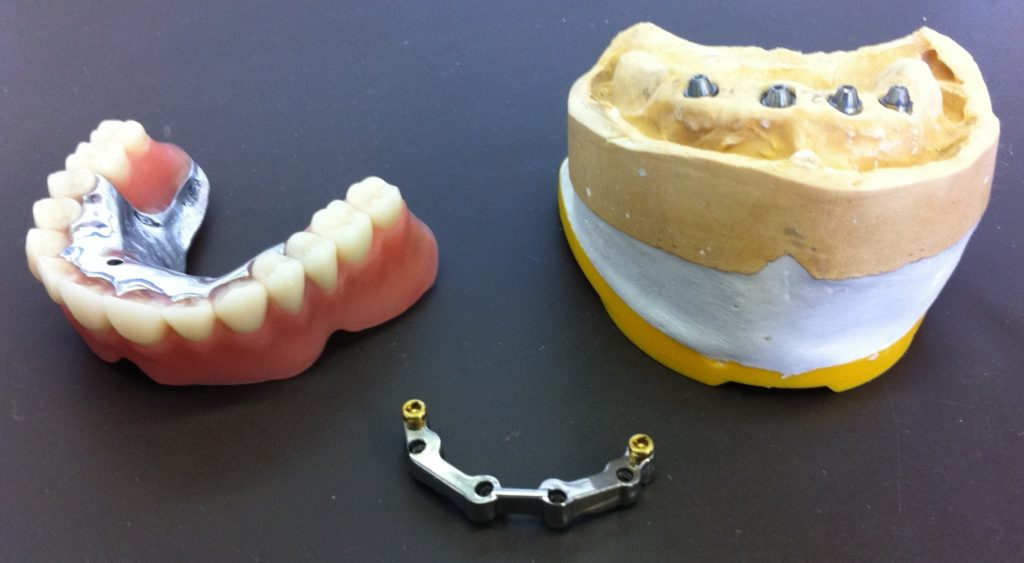 Prothèse sur implant avec barre usinée laboratoire Lopez à Limoux